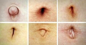 Types of Belly Button
